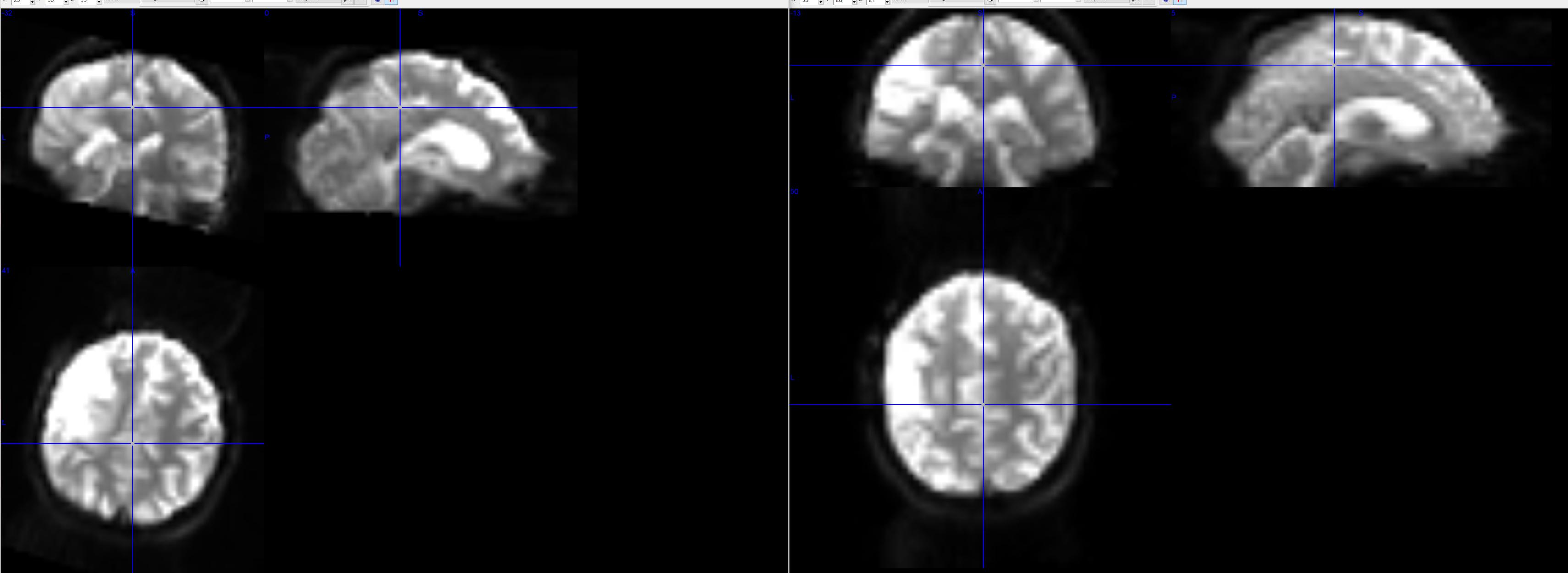 EPI to T1 registration - fmriprep - Neurostars