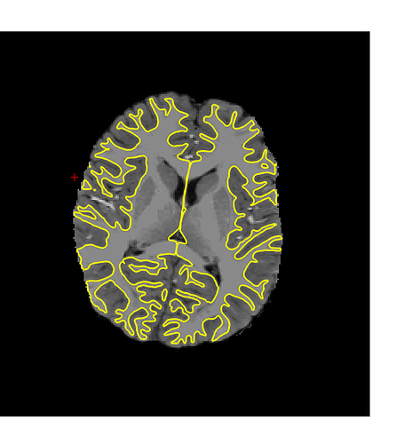 FMRIPREP_brainmask