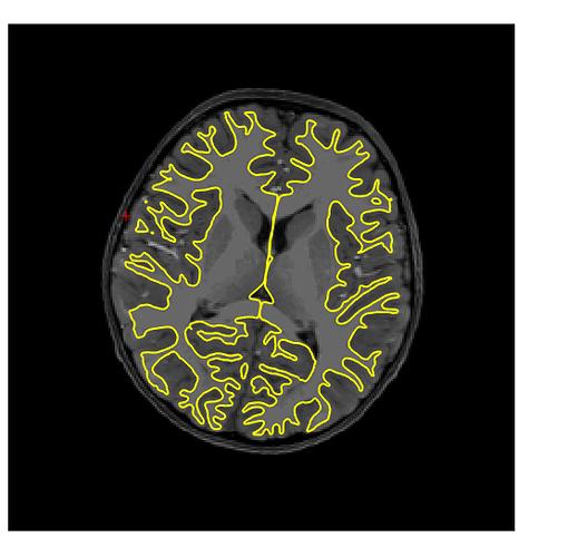 FMRIPREP_brain