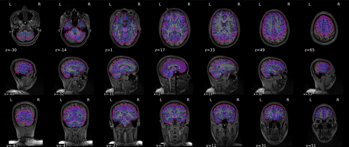 sub-01_T1w_seg_brainmask_01