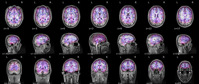 sub-18_seg_brainmask
