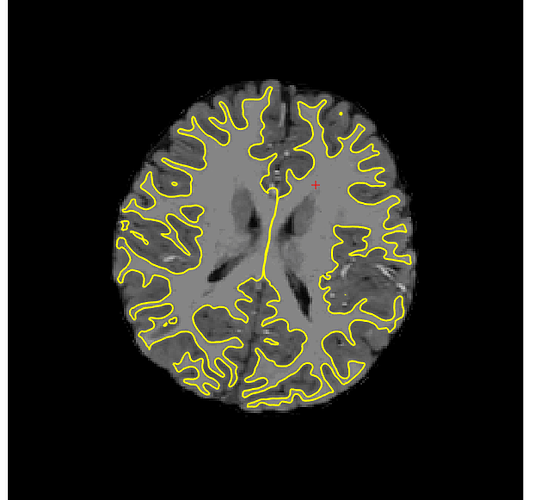 Freesurfer_brainmask