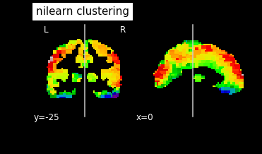 Nilearn: Low silhouette score after ward clustering