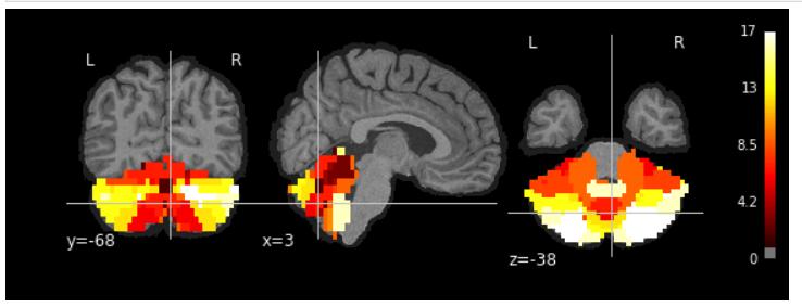 Resampling cerebellum atlas to fmriprep outcome - fmriprep