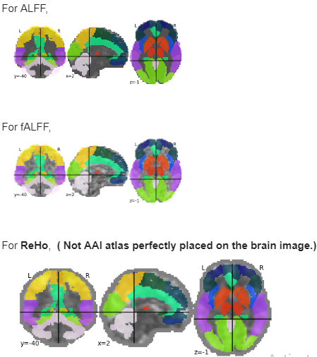 Nilearn Plot Fmri