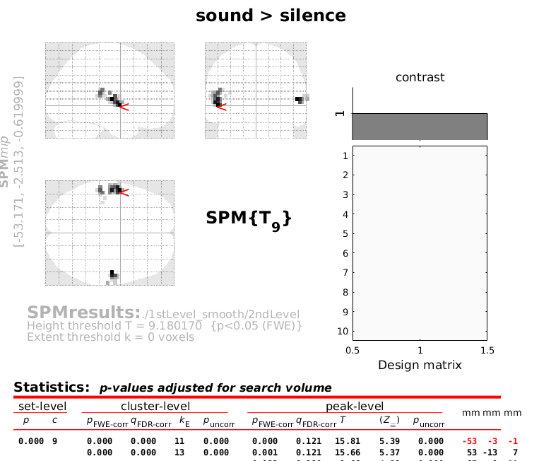 croped_SMOOTHED_8mm_sound%3Esilence
